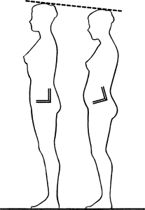 Posture: normal vs exaggerated lumbar lordosis
