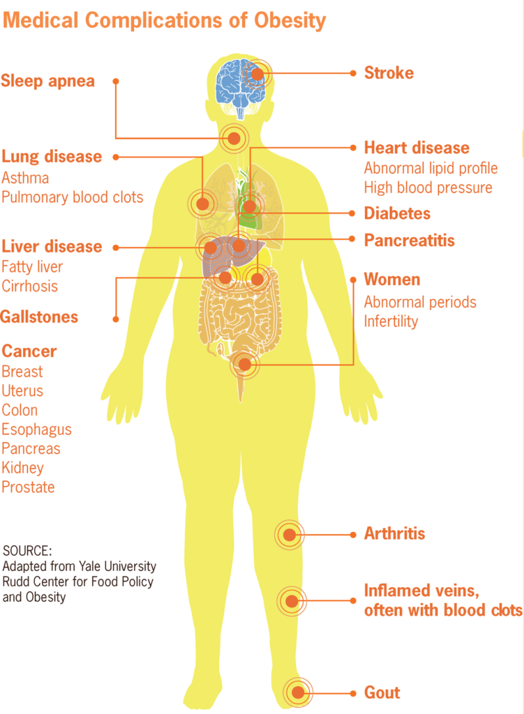 1024px-medical_complications_of_obesity